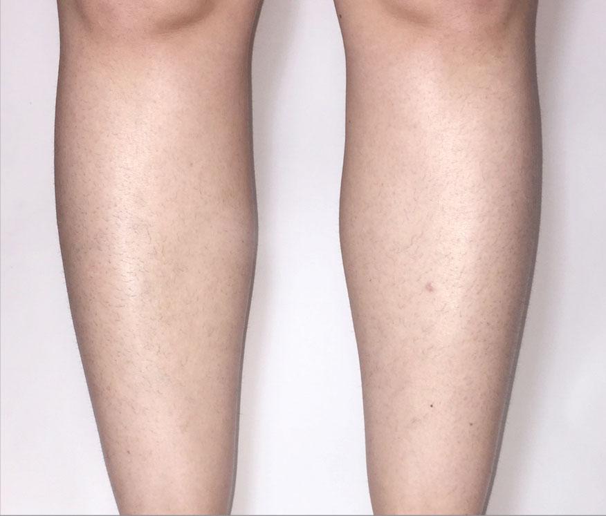 Odstranění chloupků nohy Venus Velocity před