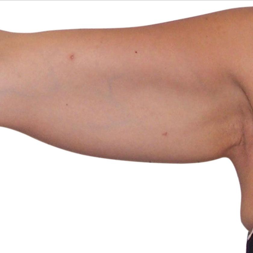 Redukce tuků před - Venus Freeze Plus