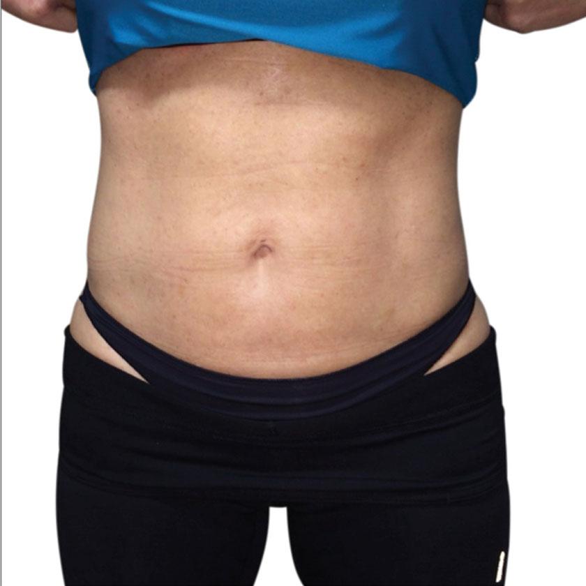 Venus Legacy - Zpevnění pokožky břicha před