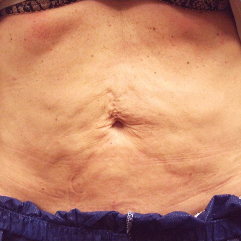 Zpevnění pokožky břicha před