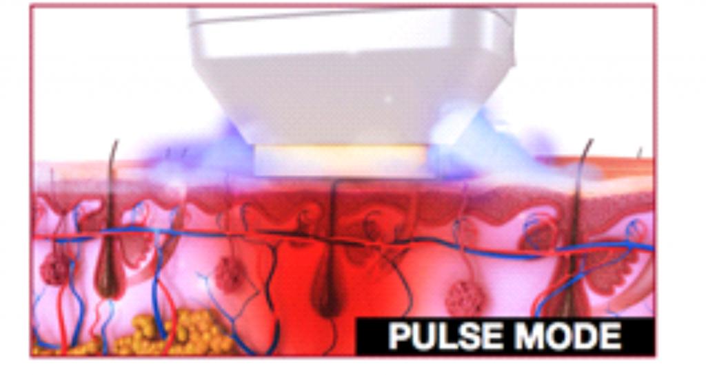 Pulse režim pro odstranění chloupků